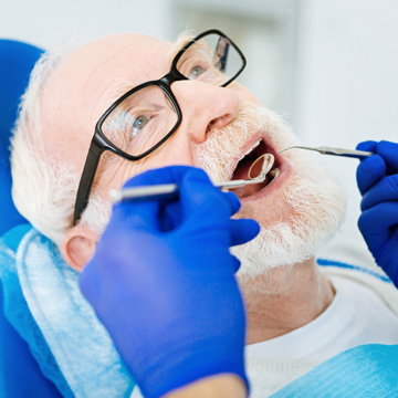 can metal fillings cause allergic reaction