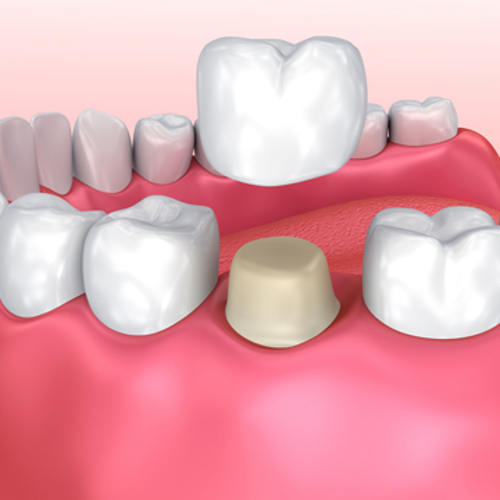 questions about dental crowns