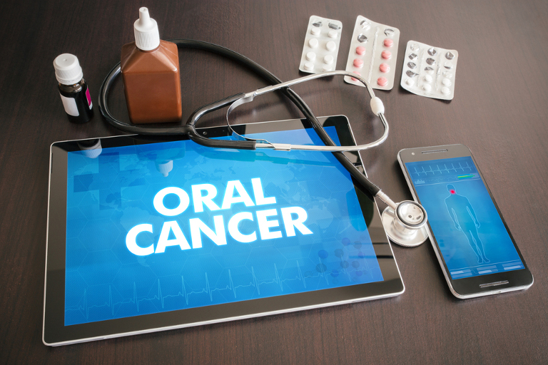 why should i get an oral cancer screening